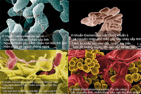 Điểm mặt 4 vi khuẩn nguy hiểm gây bệnh đường ruột ở con người